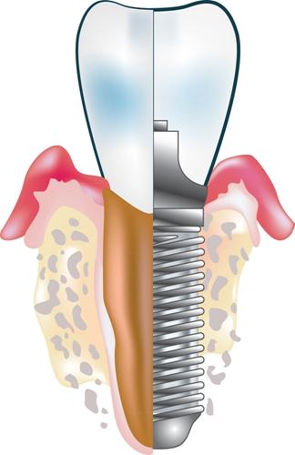 种植牙与传统镶牙哪个好?