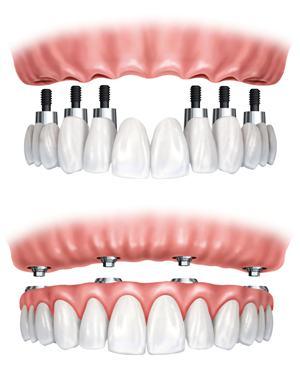 全口牙种植过程是怎样的?