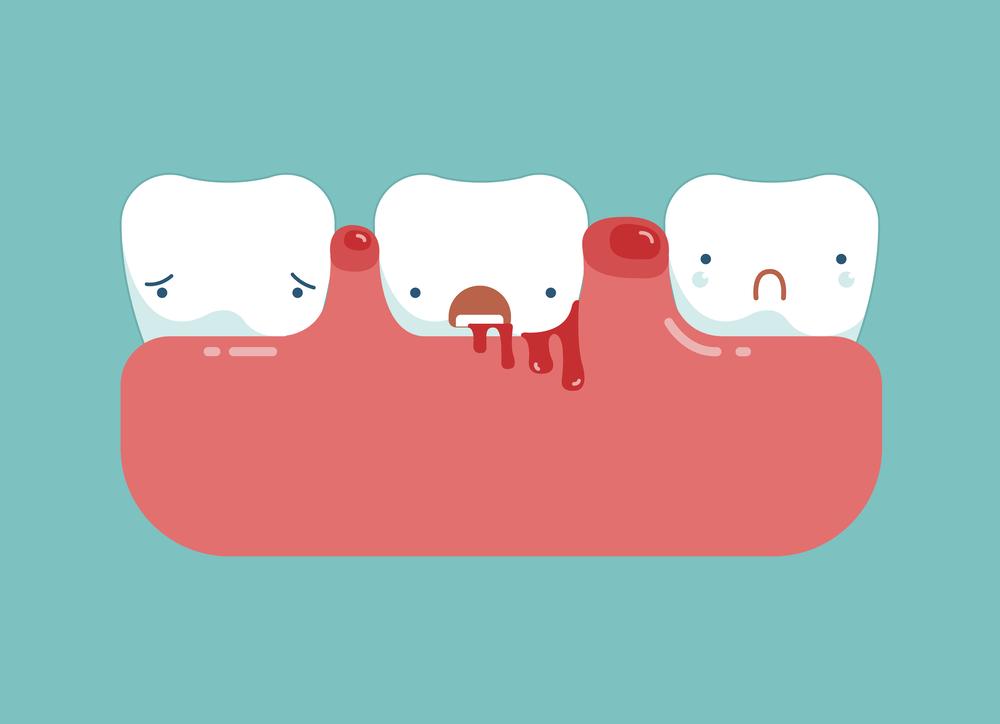 牙周炎的症状有哪些?