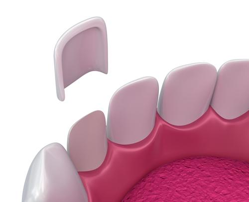 瓷贴面美白牙齿安全吗?