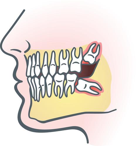 拔牙有哪些事项需要注意?