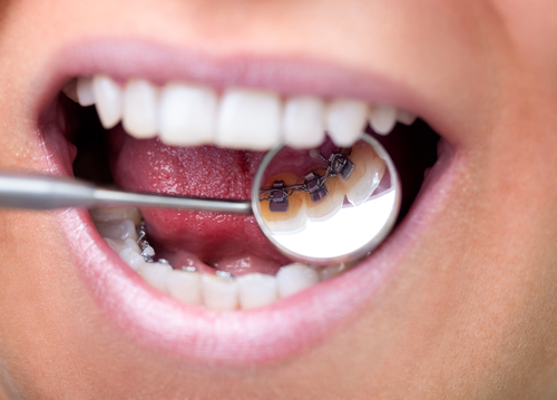 隐形矫正牙齿的效果好吗?