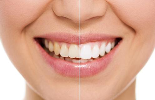 冷光美白牙齿的时候会疼吗?