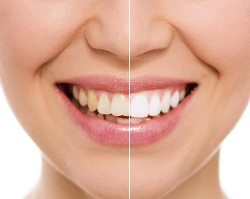 全瓷牙能使用多久?全瓷牙如何保养呢?