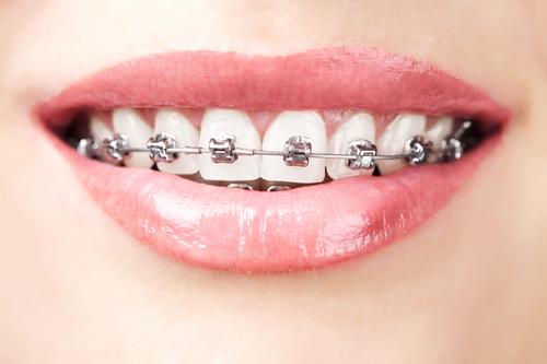 牙齿矫正会造成牙齿松动吗?