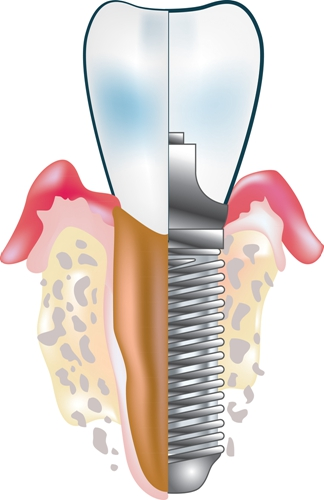 全口种植牙一般需要多少钱?