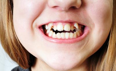 孩子为什么会牙齿不齐?
