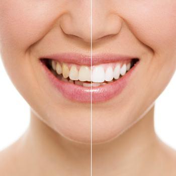 黄牙齿变白有这些小技巧