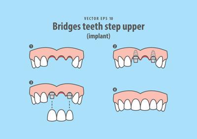 种植牙的步骤是怎么样的?