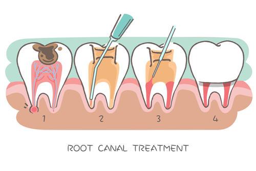 根管治疗后牙疼是怎么回事?
