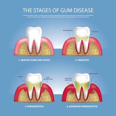 牙周炎到底是什么?牙周炎会带来哪些问题?