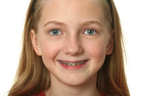 牙齿矫正后会反弹吗?