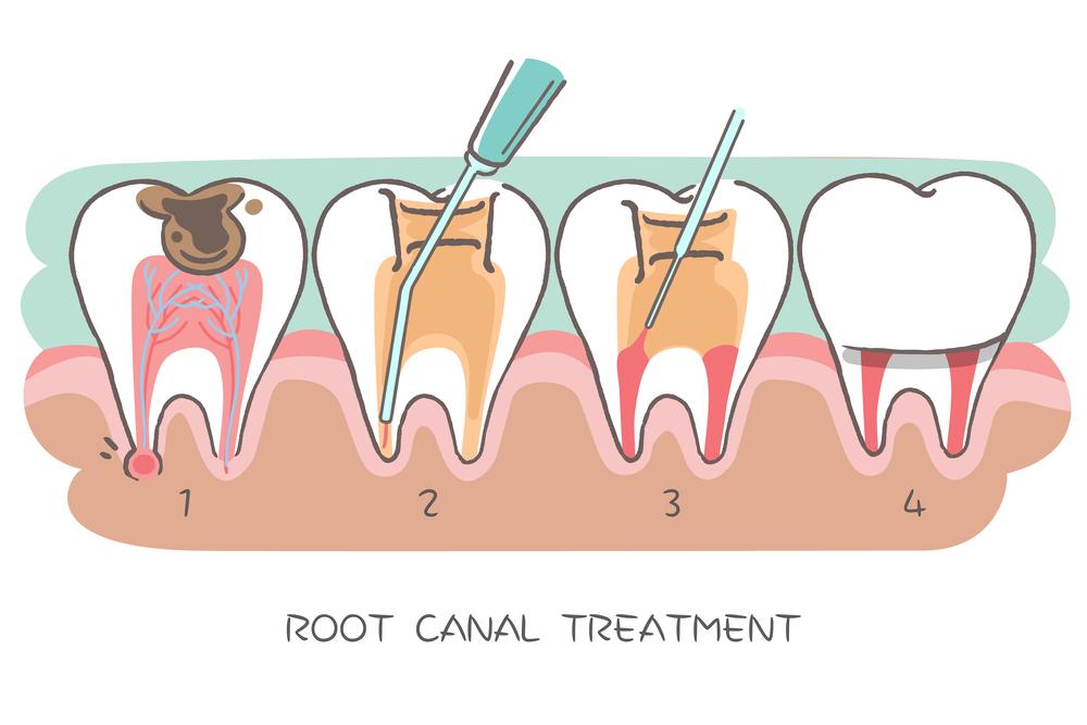"""为什么专业的牙医会建议你宁愿""""杀死""""牙齿,也不要轻易拔牙?"""