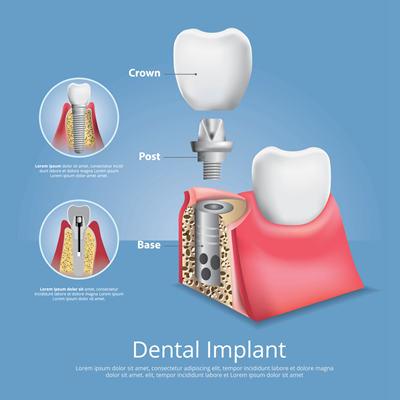 种植牙过程是怎么样的?