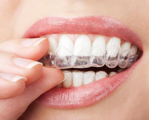 牙齿拥挤矫正方法有哪些?
