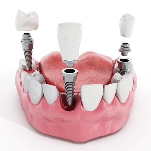 种植牙需要多少费用?