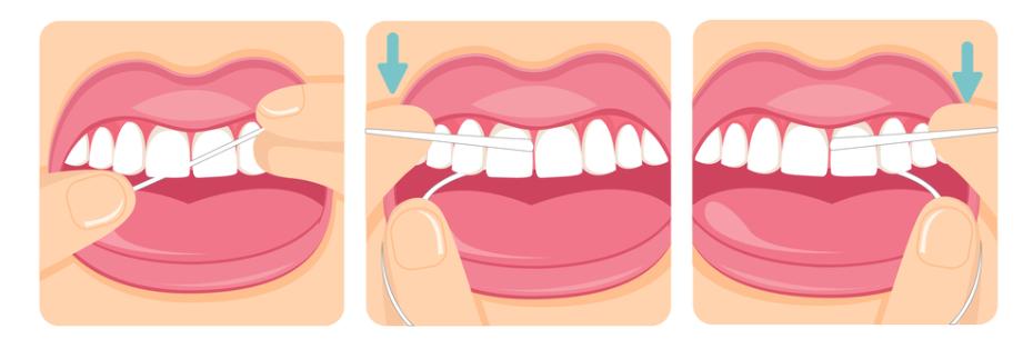 """光每天刷牙还远远不够,学会使用这些""""工具""""让你拥有健康大白牙"""
