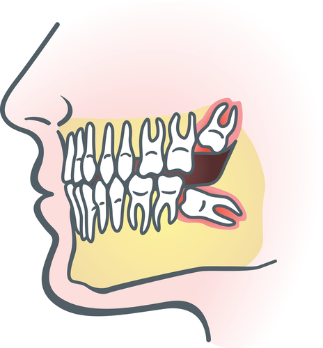 拔牙的过程是怎么样的?