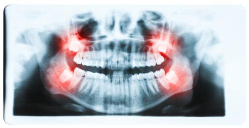 什么情况下智齿必须拔除?