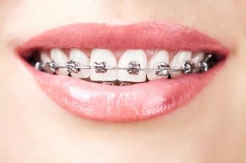 牙齿矫正的原理