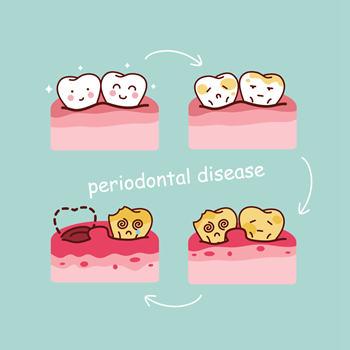 牙龈炎与牙周炎有什么区别?