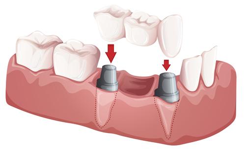 种植牙过程分为几个步骤?