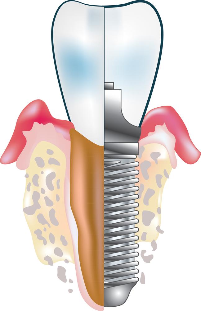 种植牙可以维持多久?