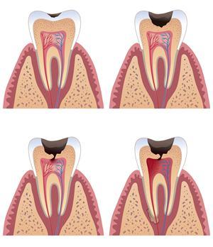 补牙要多少钱?补牙价格差异为何这么大?