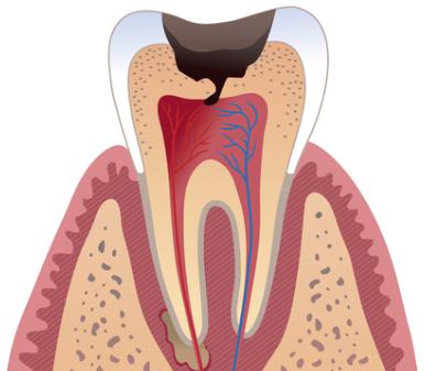 """好好一颗牙""""被医生挖掉一半,就因为牙齿上有几条黑线?"""