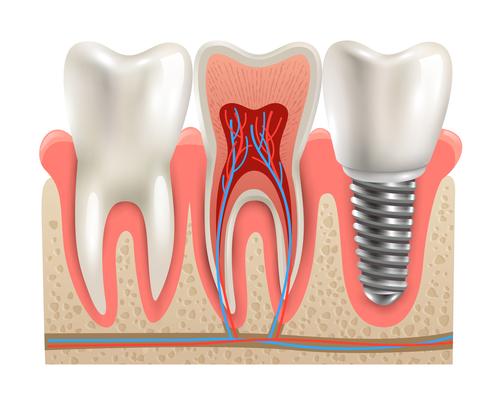 年纪大了天冷吸口凉气都牙疼!中老年人冬季该如何护牙养生呢