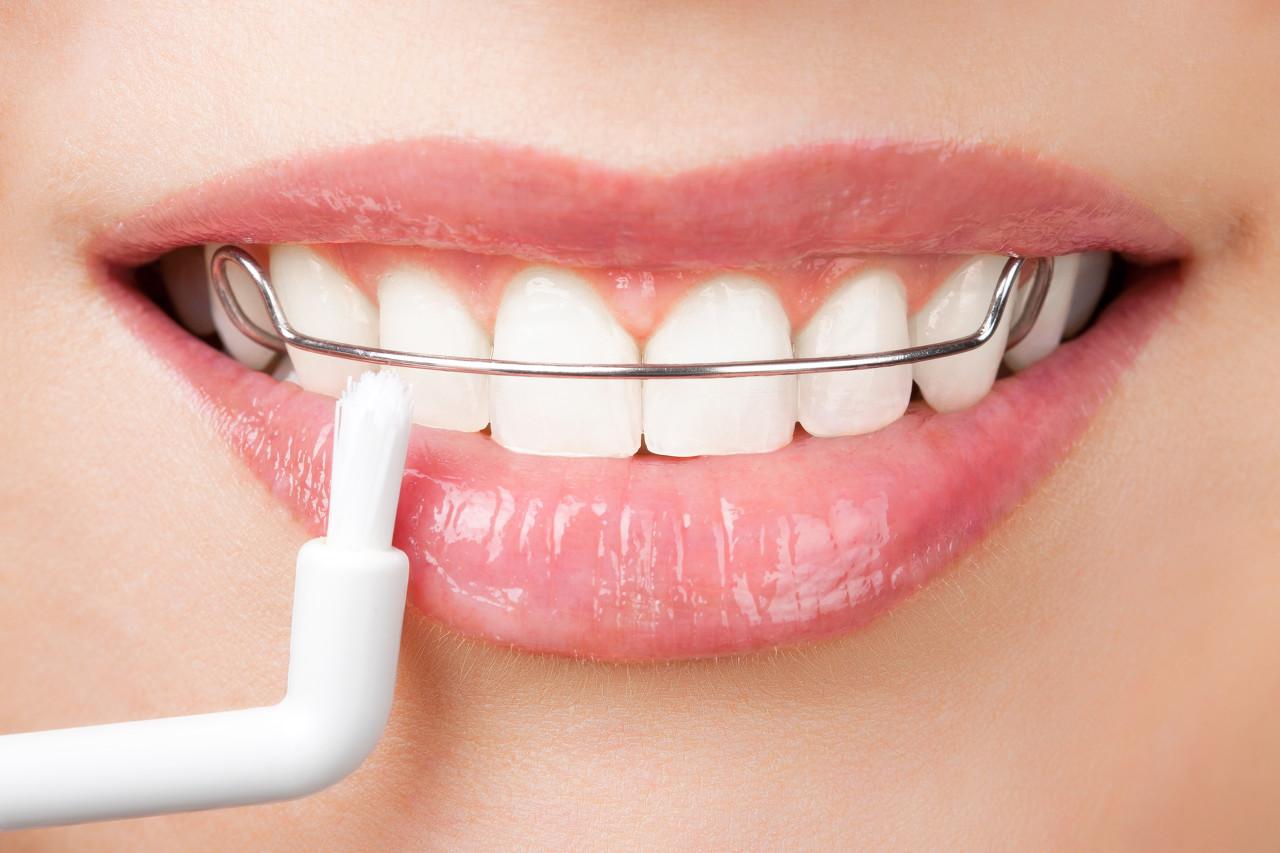 隐形矫正牙齿的效果如何?
