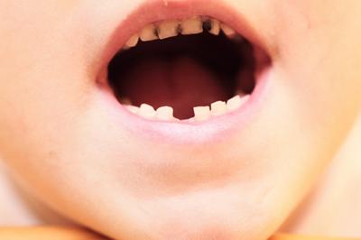 孩子蛀牙的原因有哪些?