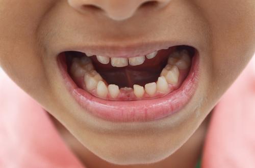 乳牙龋齿会带来哪些影响?