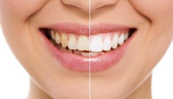 冷光美白牙齿安全吗?