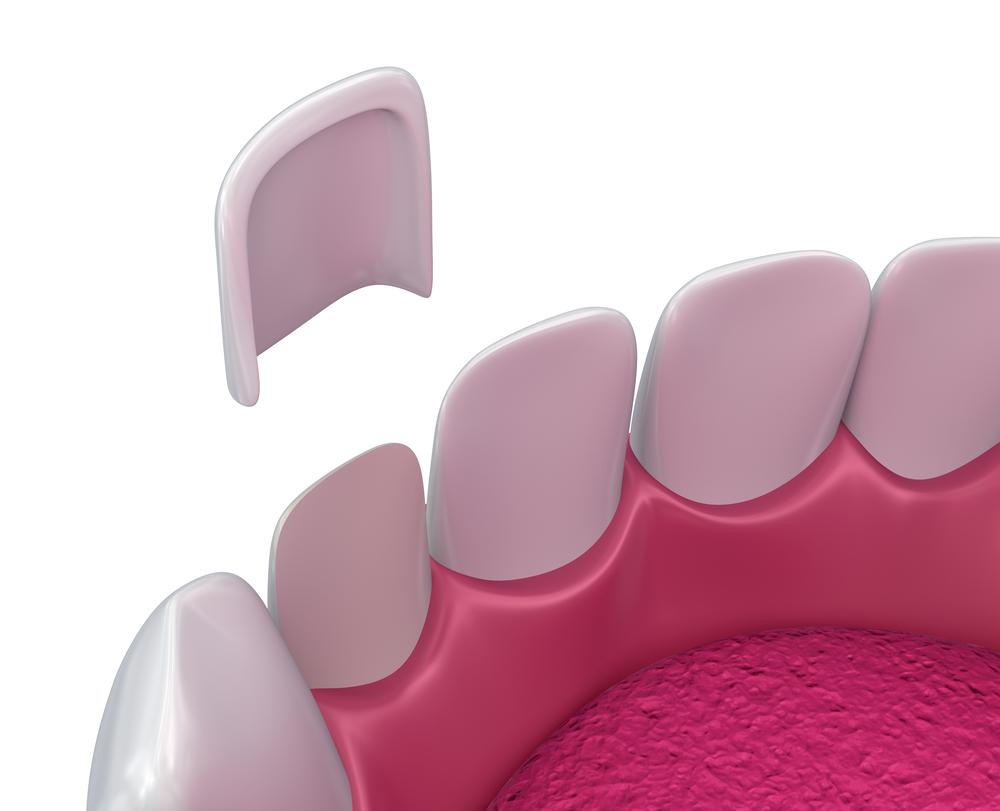 牙齿贴面可以维持多久