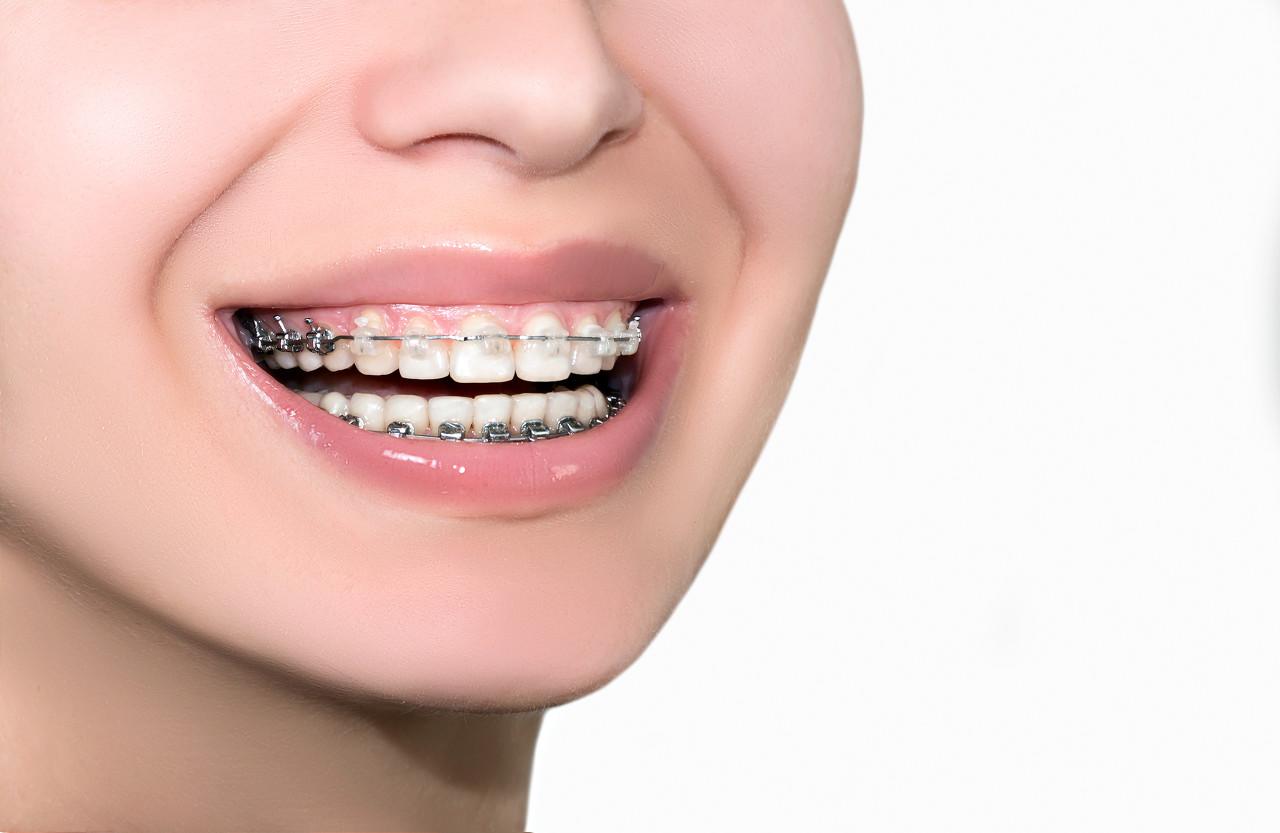 牙齿有缝隙怎么矫正