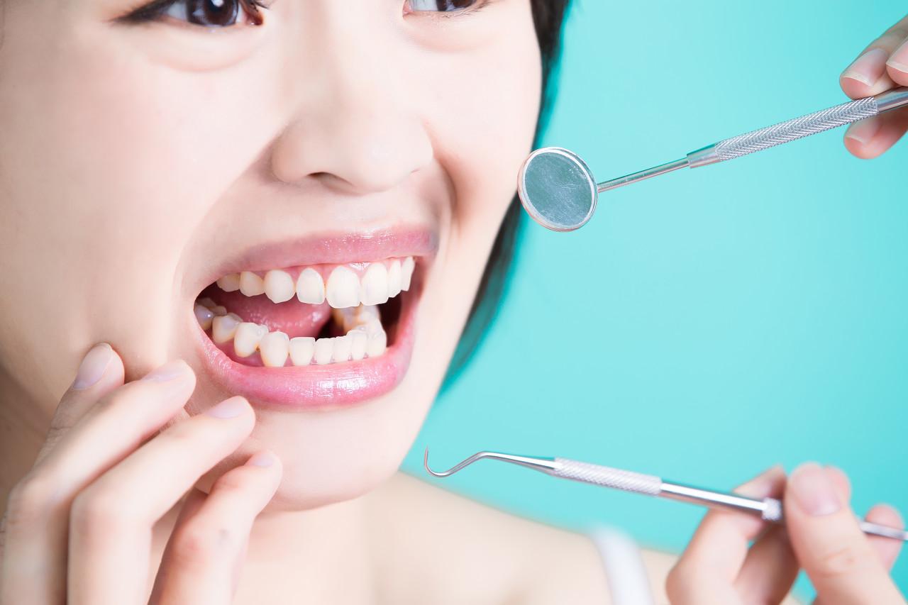 氟斑牙有哪些治疗方法,各有什么优点呢?