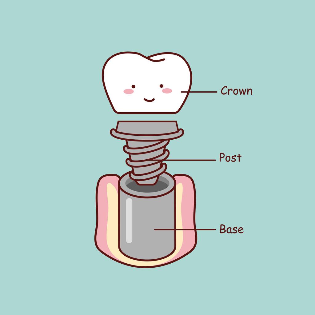 人工种植牙好吗
