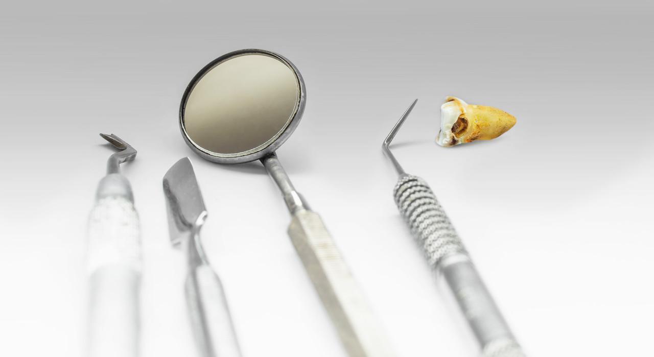 拔智齿竟要1万4,男子攒钱等太久不堪牙痛自杀!