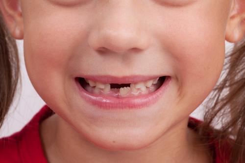 孩子牙齿长得丑,医生居然说是好事?