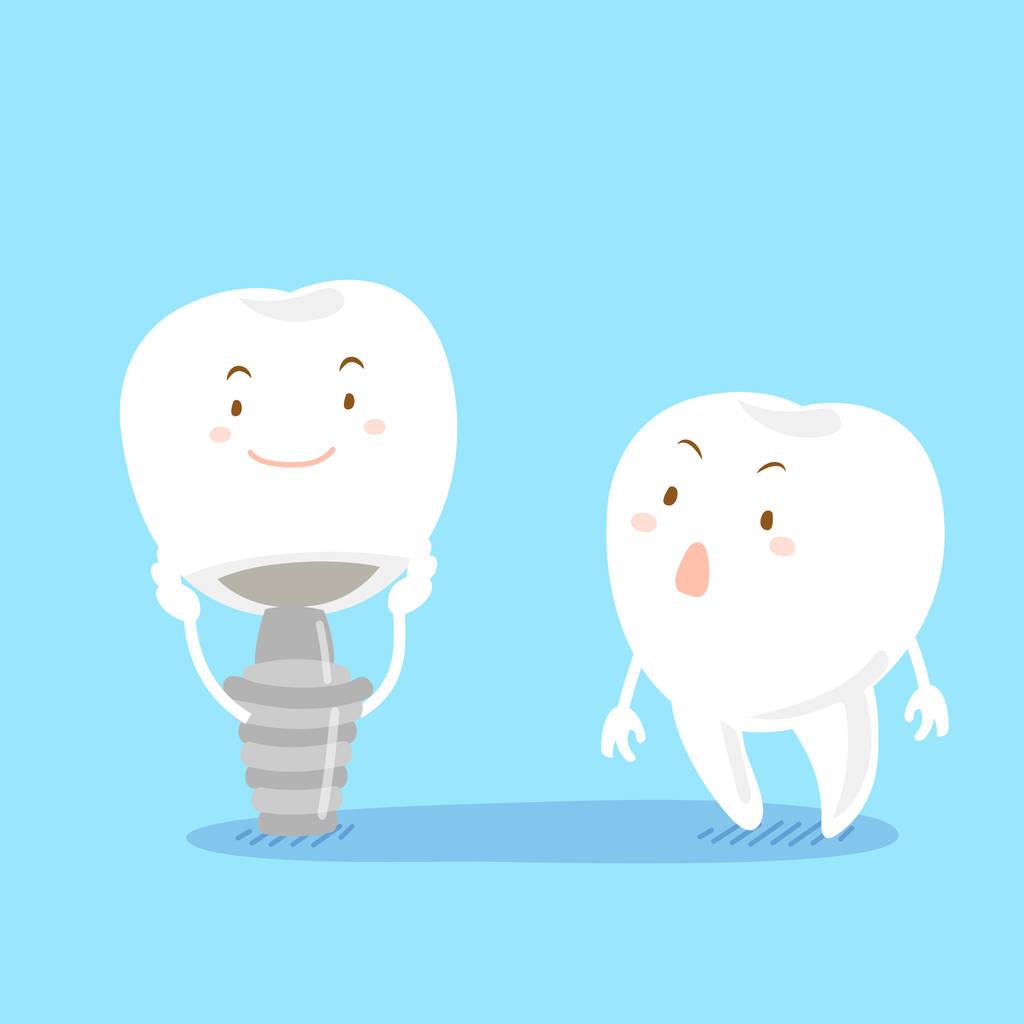 种一颗牙去哪里好一些