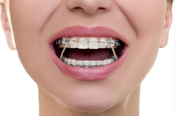 【牙医说第18期】现在矫牙还挂皮筋,是不是很落伍了?